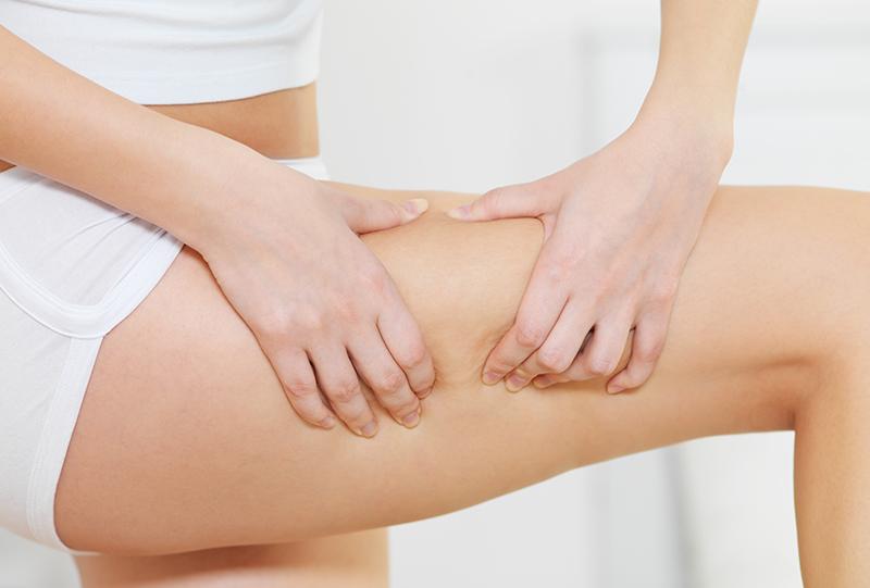 ¿Tengo Lipedema? ¿Por eso me duelen tanto las piernas?
